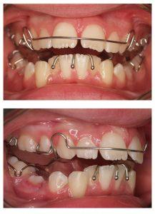 Twin block braces